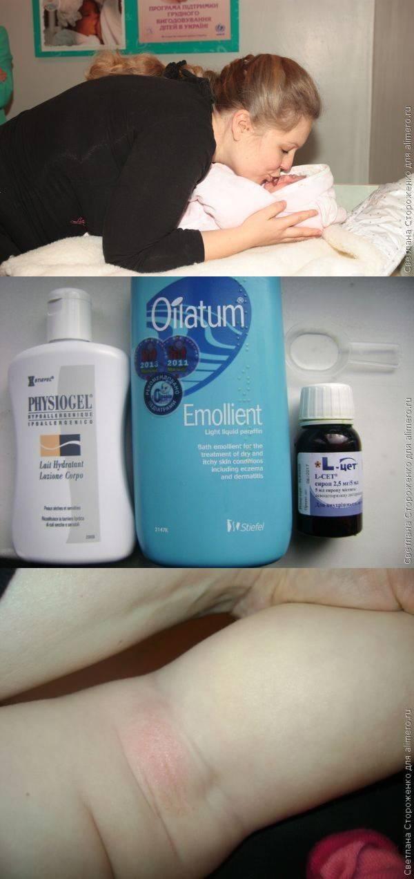 Аллергия на дрожжи у ребенка