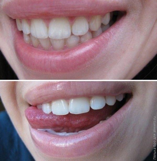 полоски крест для отбеливания зубов отзывы стоматологов