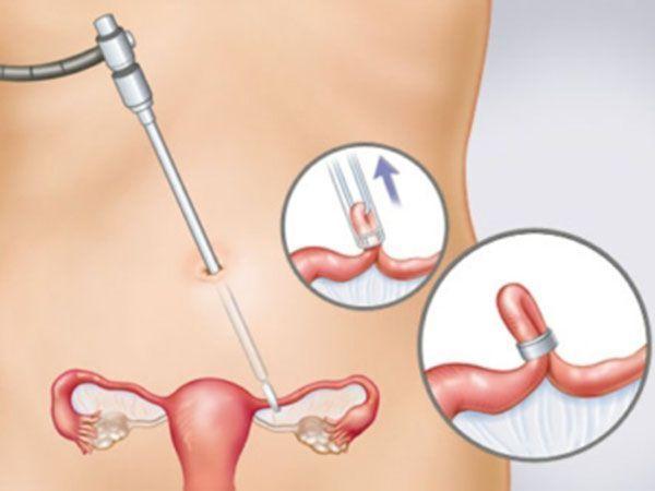Стерилизация. Это самый эффективный метод контрацепции с надежностью 99,9%. Женщин стерилизуют путем перевязки маточных труб, мужчин – методом вазэктомии. Но основной минус стерилизации – радикальность, так как если вы спустя определенное количество лет захотите оставить после себя потомство – вам это не удастся.