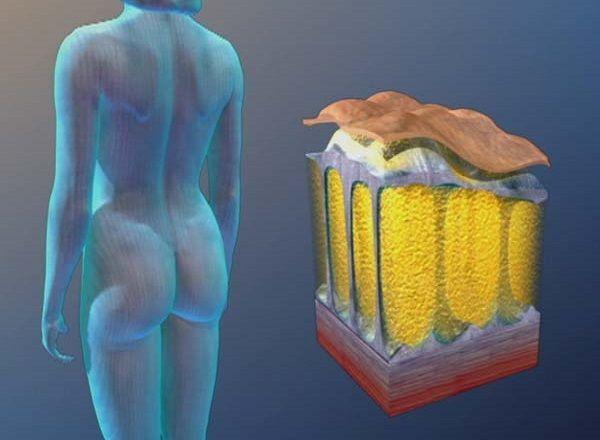 Миф №8: целлюлит и ожирение - это одно и то же. Факт: на самом деле это разные вещи. Дело в том, что целлюлит возникает из-за изменения гормонального фона, а также при нарушении водно-солевого обмена в организме женщины. Произойти это может даже тогда, когда человек решил активно худеть и сел на диету.