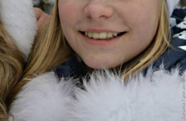 Белые пятна на зубах как избавиться