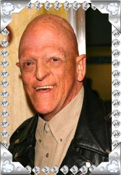 Майкл Берриман родился с диагнозом гипогидротическая эктодермальная дисплазия, при котором человек лишается волос, ногтей и зубов и вообще имеет внешность мутанта из фантастического фильма. Собственно, на ролях мутантов Берриман и специализируется.  Но он также превосходно играет и в серьезных драмах, и в улетных комедиях.