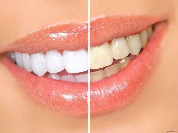 16. Отбелить зубы. Раз в неделю окунать щетку в уксус и тщательно чистить зубы. Такое очищание также поможет избавиться от неприятного запаха изо рта.