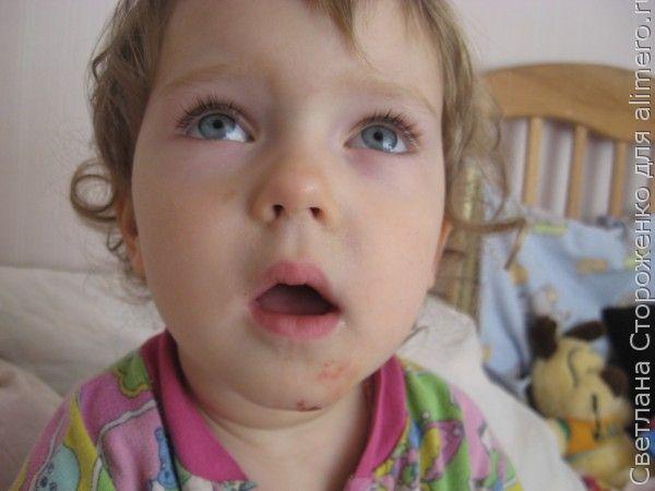 Ребенка укусил ребенок в саду. Что делать?