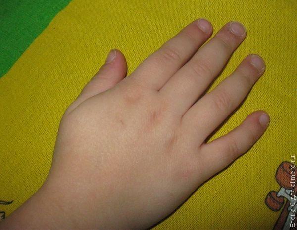 3 способа отучить ребенка грызть ногти