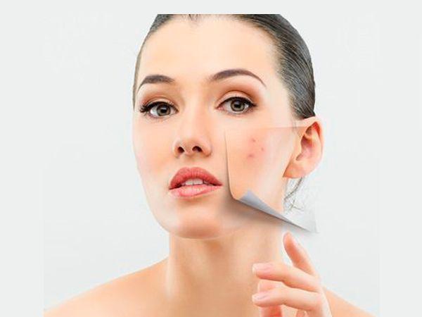 Псориаз представляет собой болезненные шелушения кожи. Натрите мясистой частью банановой кожуры пораженные участки для облегчения симптомов псориаза, таких как боль и сухость. В случае угревой сыпи проделайте аналогичные действия. Вы заметите улучшение в течение нескольких применений.