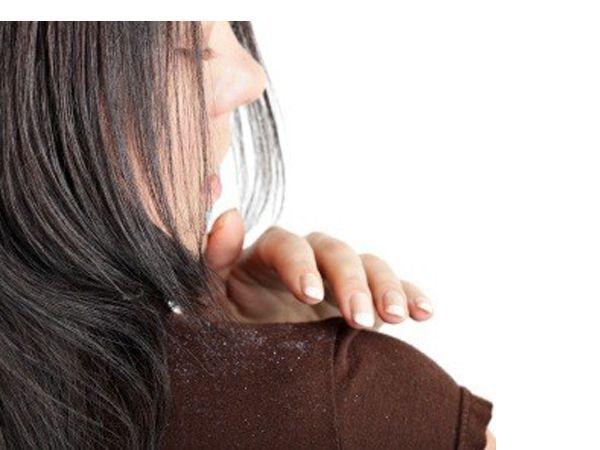 Забудьте о дорогих шампунях от перхоти. Из заменит оливковое масло. Втирайте его за полчаса до мытья волос в кожу головы, и вы скоро распрощаетесь со своей проблемой.